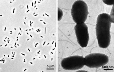 Verminephrobacter eiseniae